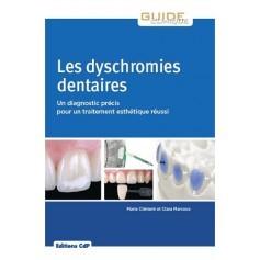 Les dyschromies dentaires