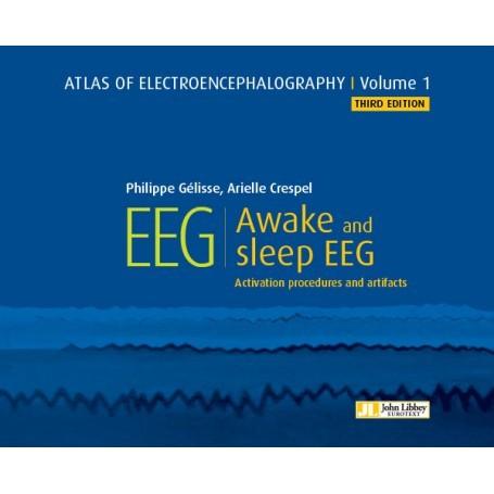 Atlas of electroencephalography, volume 1 : awake and sleep EEG