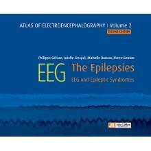 Atlas of electroencephalography, volume 2 : the epilepsies