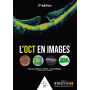 L'OCT en images