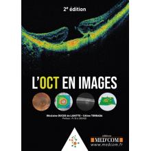 L'OCT en images