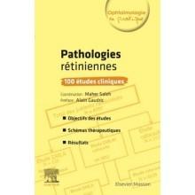 Pathologies rétiniennes : 100 études cliniques