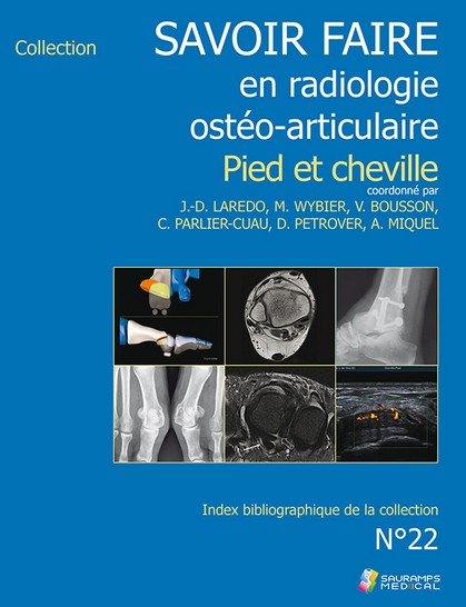 Savoir faire en radiologie ostéo-articulaire n°22