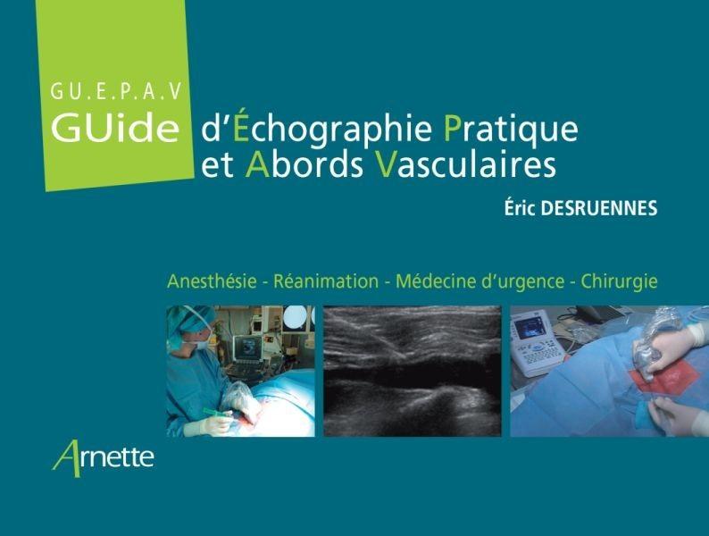 Guide d'échographie pratique des abords vasculaires