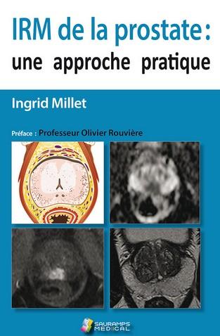 IRM de la prostate : une approche pratique