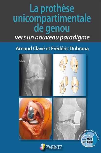 La prothèse unicompartimentale de genou