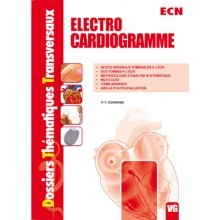 Electrocardiogramme
