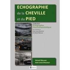 Echographie de la cheville et du pied