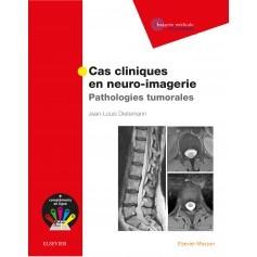 Cas cliniques en neuro-imagerie : pathologies tumorales
