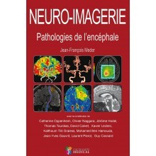 Neuro-imagerie