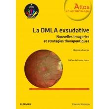 La DMLA exsudative