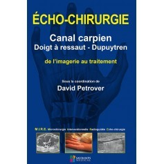 Echo-chirurgie : canal carpien