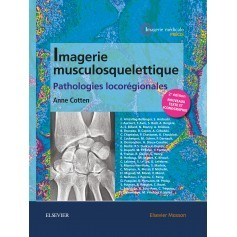 Imagerie musculosquelettique : pathologies locorégionales