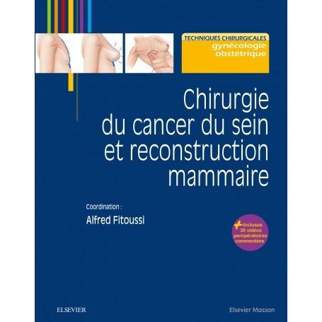 Chirurgie du cancer du sein et reconstruction mammaire