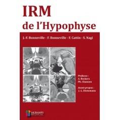 IRM de l'hypophyse