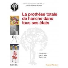 La prothèse totale de hanche dans tous ses états