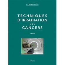 Techniques d'irradiation des cancers