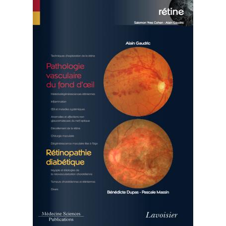 Pathologie vasculaire du fond d'oeil, rétinopathie diabétique