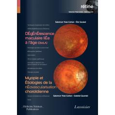 DMLA, myopie et étiologies de la néovascularisation choroïdienne