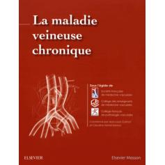 La maladie veineuse chronique
