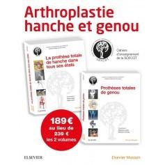 Arthroplastie hanche et genou