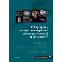 Echographie en anesthésie régionale